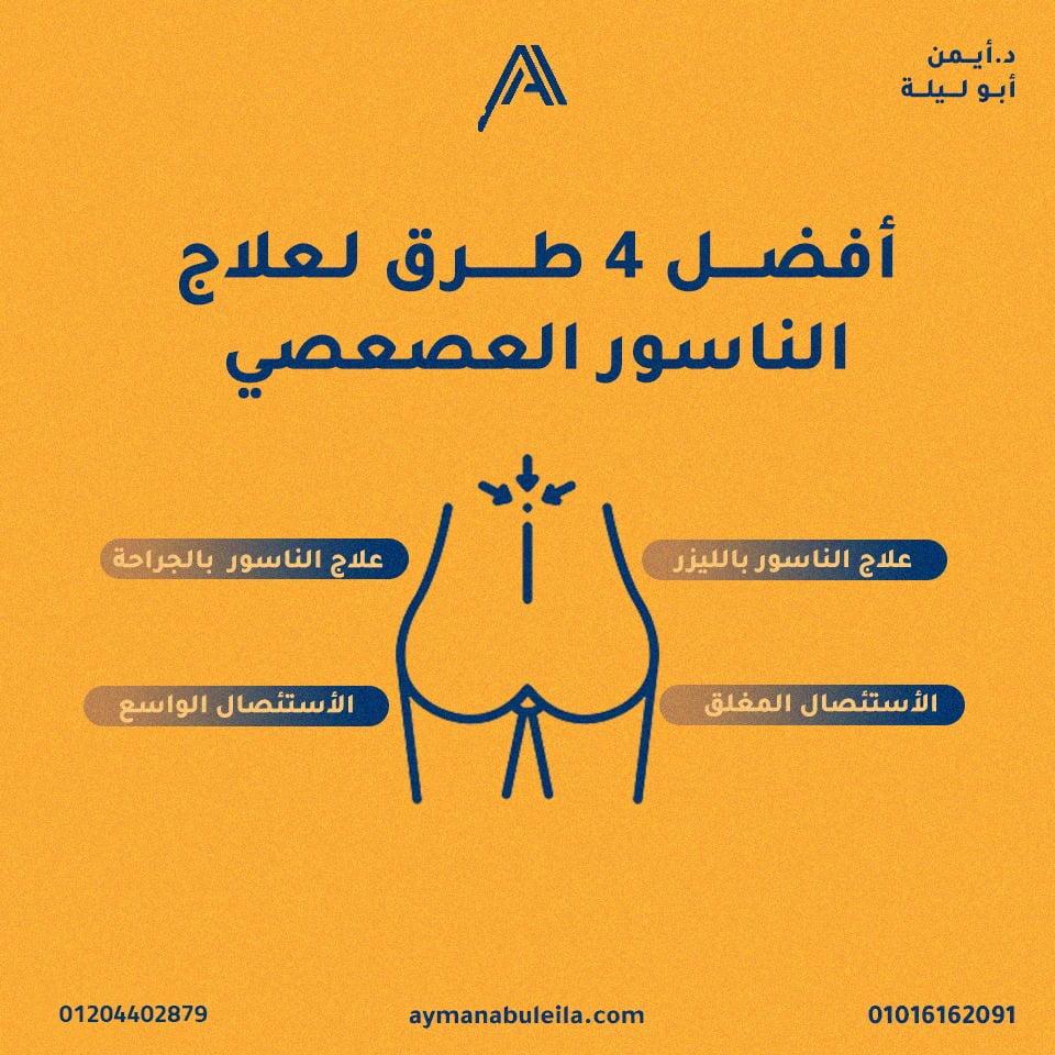 مرض الناسور العصعصي وعلاجه| ماهي طرق علاج الناسور العصعصي