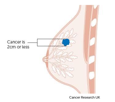 ما هو نظام TNM لسرطان الثدي؟ ,ما علاقته بمراحل انتشار سرطان الثدي