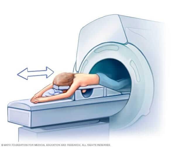 انواع علاج سرطان الثدي: وطريقة الرنين المغنطيسي  للكشف وفحص الثدي من السرطان