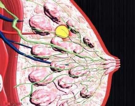انواع علاج سرطان الثدي: دور الحجامة في علاج سرطان الثدي