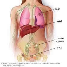 هل سرطان الثدي ينتشر في الجسم؟