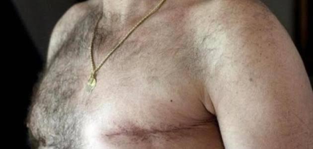 سرطان في الصدر لدى الرجال