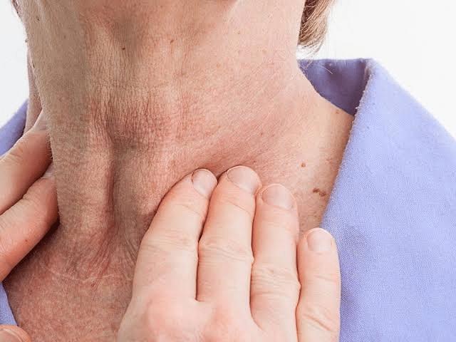 نصائح بعد جراحة استئصال الغدة الدرقية