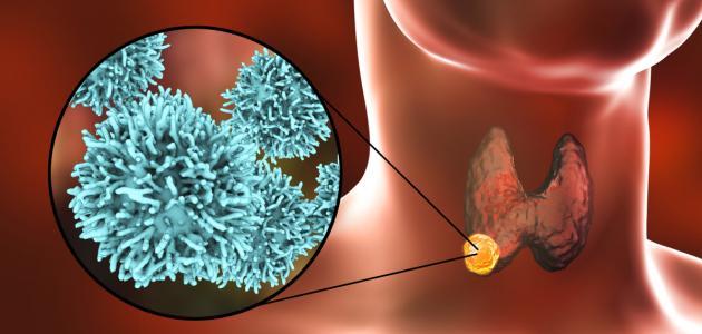 اعراض ارتفاع هرمون الغدة الدرقية tsh:  : لماذا تعتبر الغدة الدرقية من أهم الغدد الصماء لدى النساء بالأخص؟