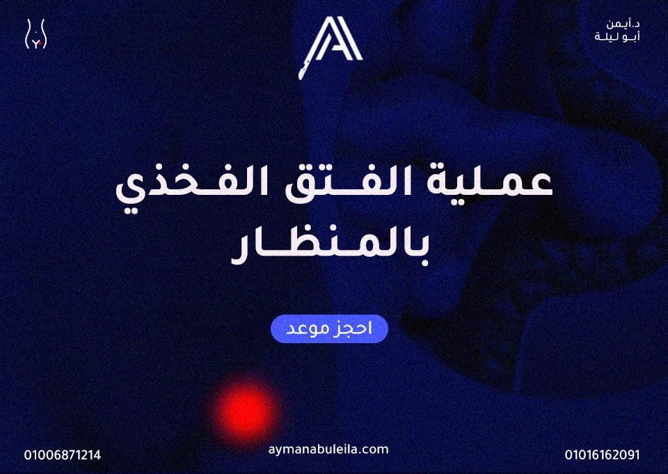 افضل دكتور جراحة عامة في القاهرة :دليلك لسعر عملية الفتق الفخذي بالمنظار |الاسباب والاعراض