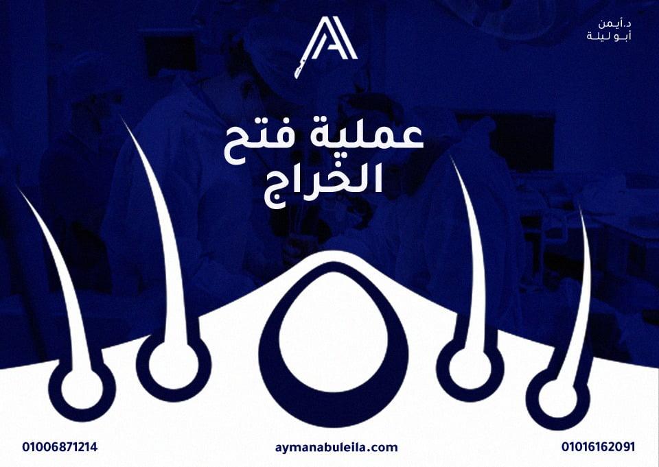 افضل دكتور جراحة عامة في القاهرة: عملية فتح الخراج