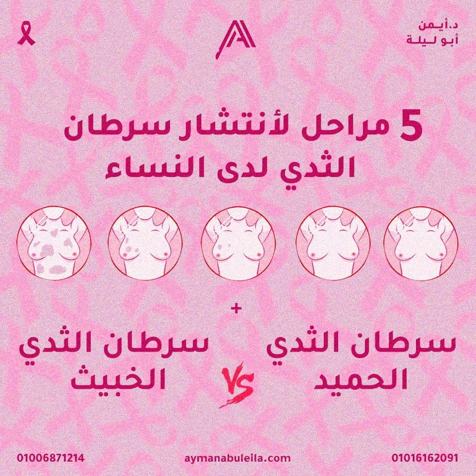 5 مراحل انتشار سرطان الثدي|وماهو سرطان الثدي الخبيث والحميد