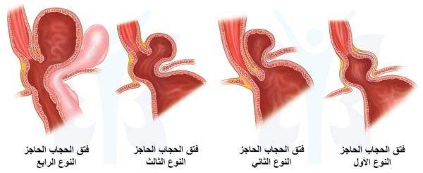 : جراحه فتق الحجاب الحاجز: انواع ودرجات فتق الحجاب الحاجز