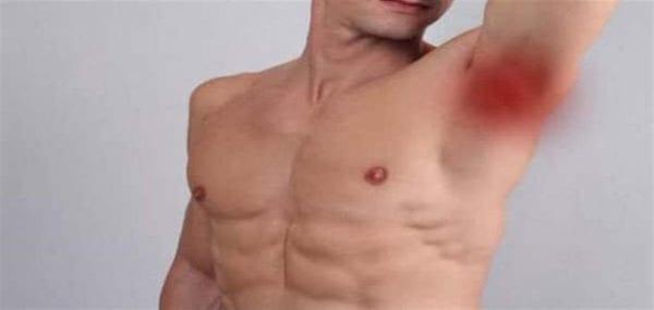 عملية استئصال الغدد الليمفاوية من الرقبة واماكن الاخري في الجسم