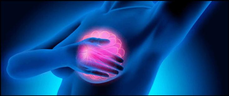 استعدادات قبل عملية استئصال الثدي المصاب بالسرطان