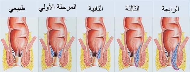 اعراض البواسير الداخلية عند الرجال-المراحل الاربعه للبواسير
