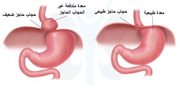 أسباب و اعراض مرض فتق الحجاب الحاجز| و 4 أنواع الفتاق