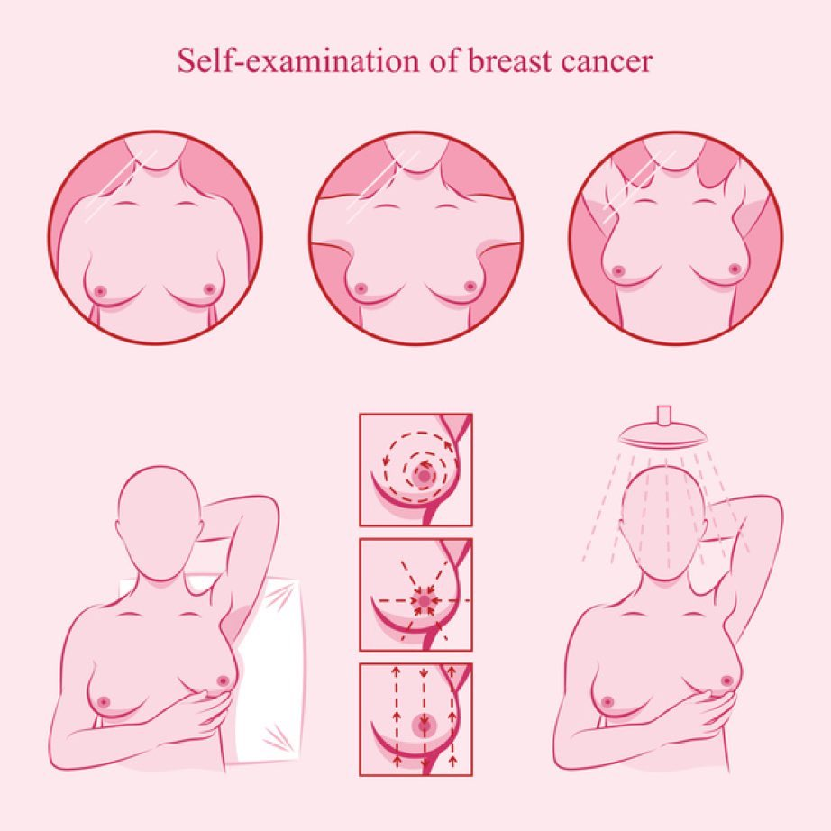 كيفية الفحص المنزلي لسرطان الثدي عند النساء؟