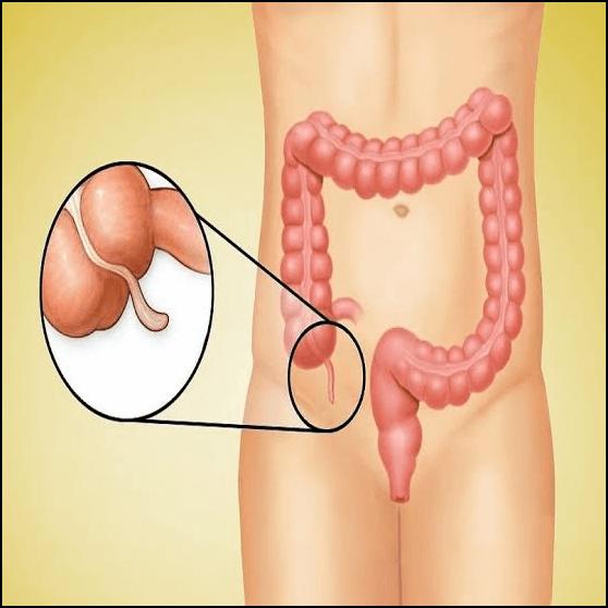 اعراض الزايدة الدوديه في الجسم ما المقصود بالزائدة الدودية؟