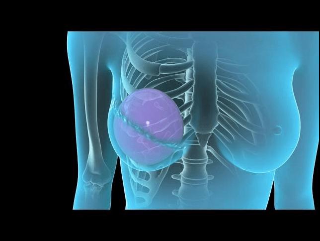 سعر عملية استئصال الثدي المصاب بالسرطان مع د. أيمن أبو ليلة