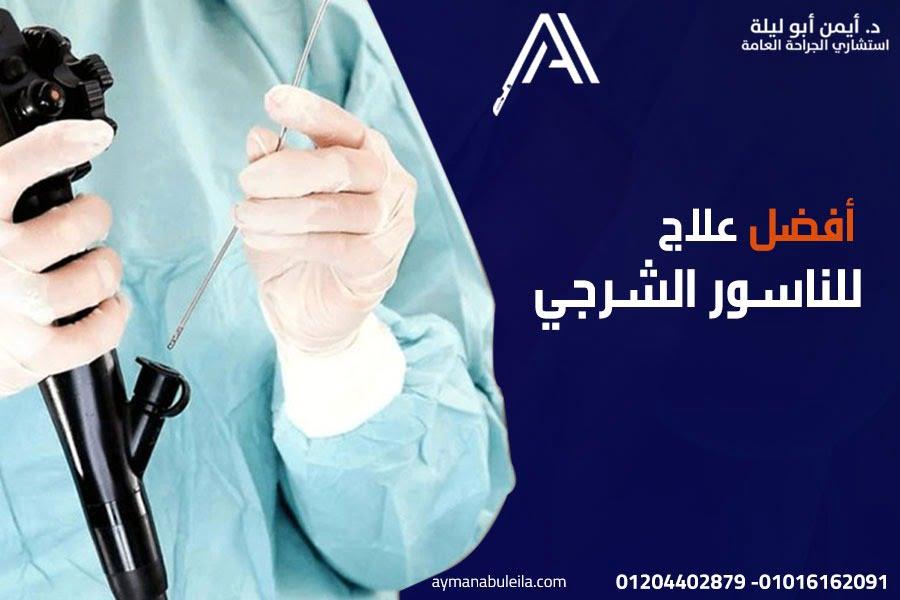 افضل دكتور جراحة عامة في القاهرة للافضل علاج للناسور الشرجي بعملية االناسور الشرجي