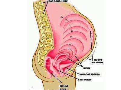 اسهل طريقه لعلاج البواسير عند النساء بعد الحمل