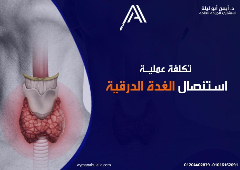 افضل دكتور جراحة عامة في القاهرة: عملية استئصال الغدة الدرقية بالمنظار