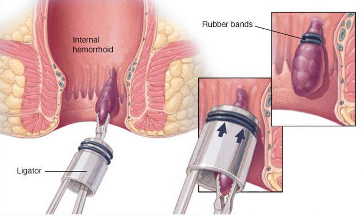 اعراض البواسير الداخلية عند الرجال:عملية استئصال البواسير بالليزر