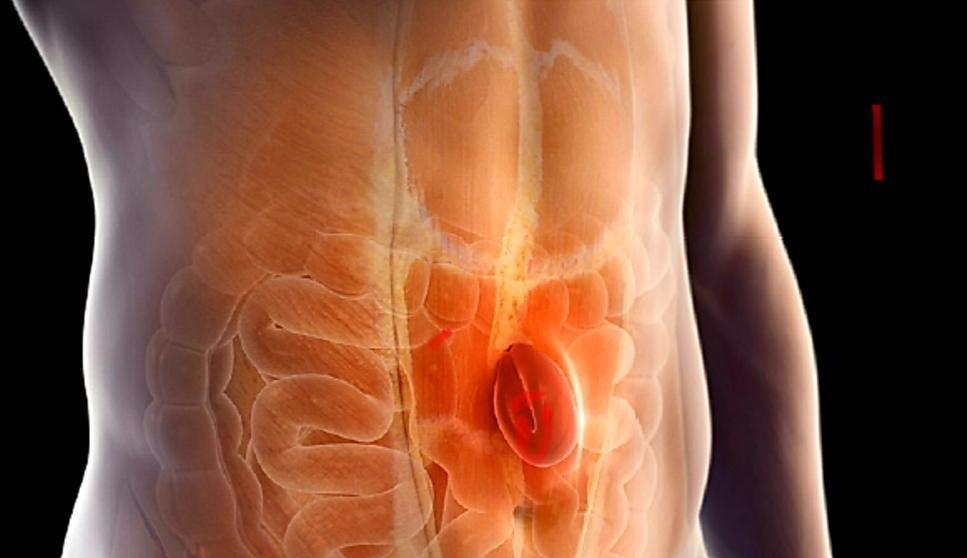 اعراض الفتق السري عند الرجال والنساء الحوامل والأطفال