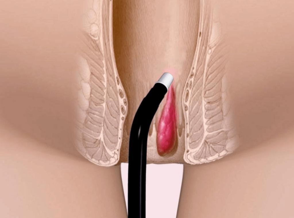 كيفية إجراء علاج الناسور الشرجي بالليزر