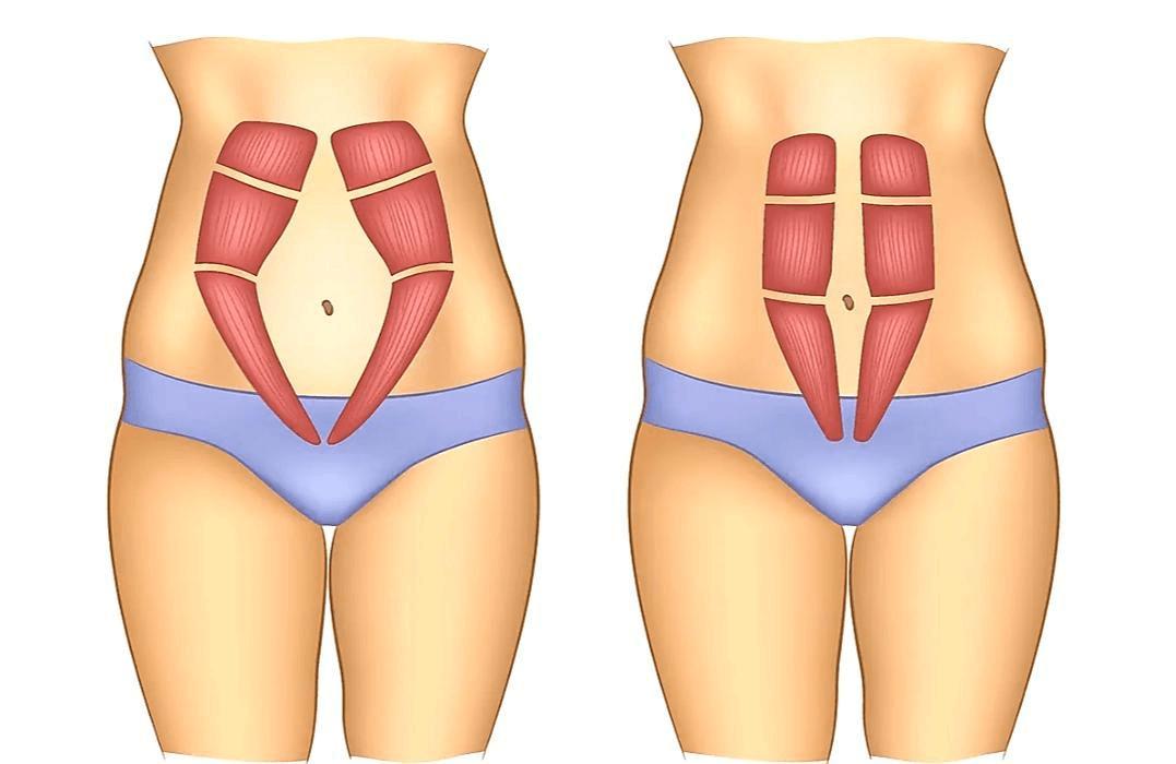 هل يمكن إجراء عملية شد ترهلات البطن أثناء القيصرية؟