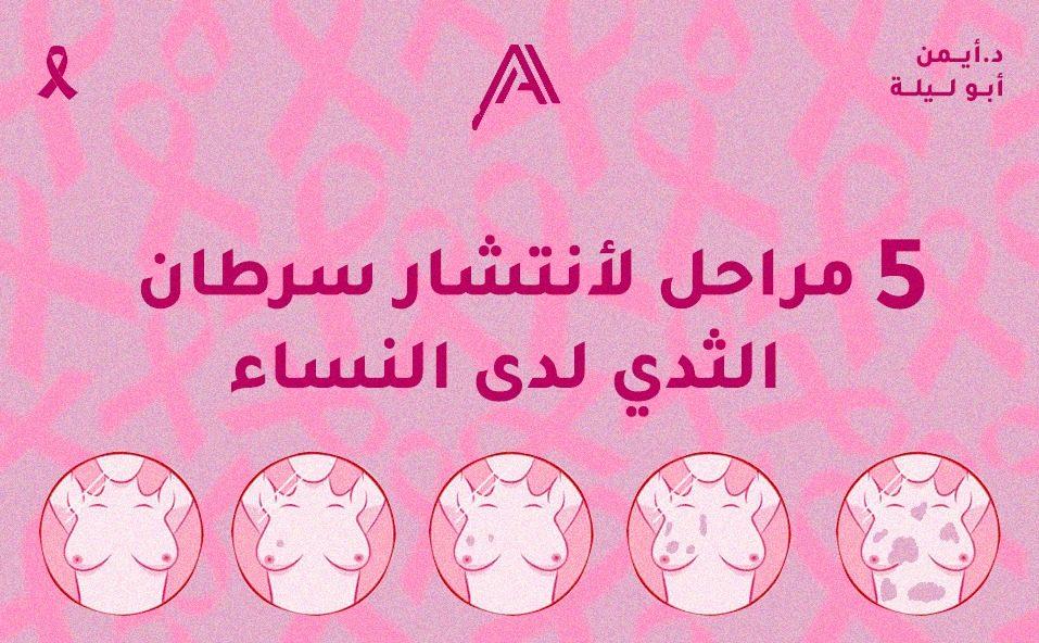 علاقة الغدد الليمفاوية بسرطان الثدي