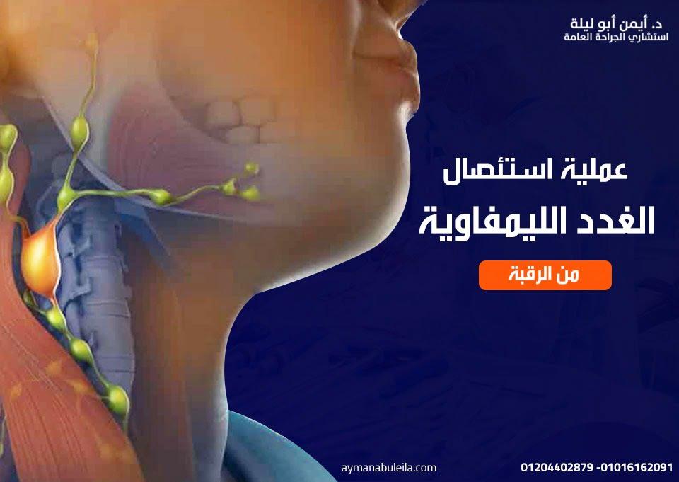 افضل دكتور جراحة عامة في القاهرة : عملية استئصال الغدد الليمفاوية من الرقبه