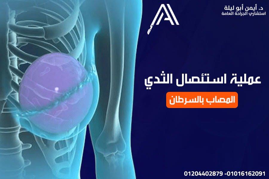 افضل دكتور جراحة عامة في القاهرة لعملية استئصال الثدي المصاب بالسرطان