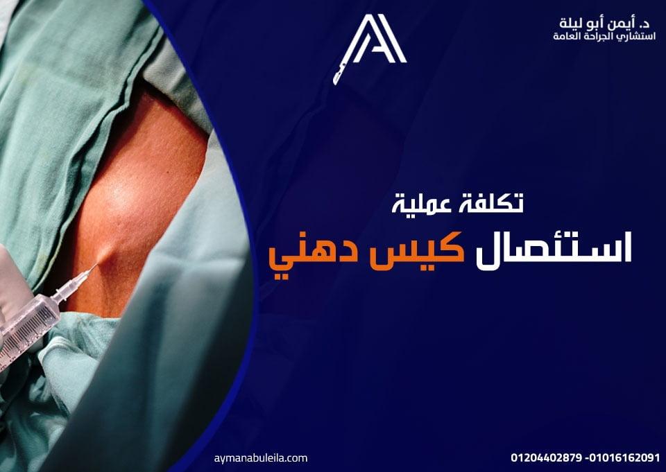 افضل دكتور جراحة عامة في القاهرة: عملية إزالة الكيس الدهني