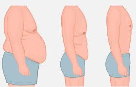 الآثار الجانبية لعملية شد ترهلات البطن للرجال او النساء