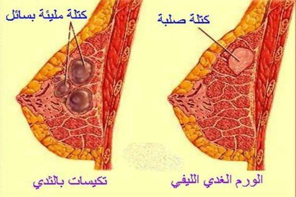 وصف كتلة سرطان الثدي تحت الابط: